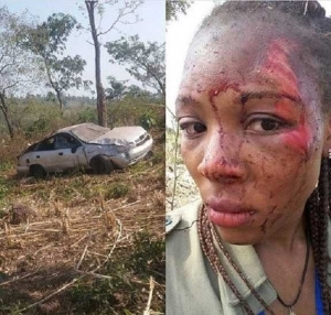 MIRACLE!!! Corper Covered In Blood Could Still Take A Selfie After Surviving A Road Accident (Pics)